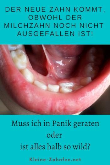 Neuer Zahn kommt, obwohl der Milchzahn noch nicht ausgefallen ist Pinterest
